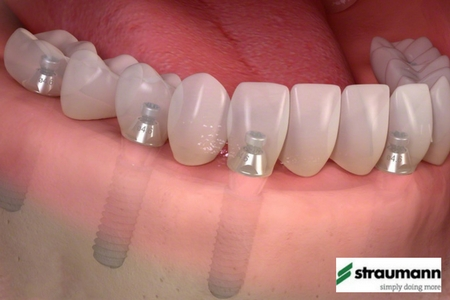 Implants Leicester Straumann